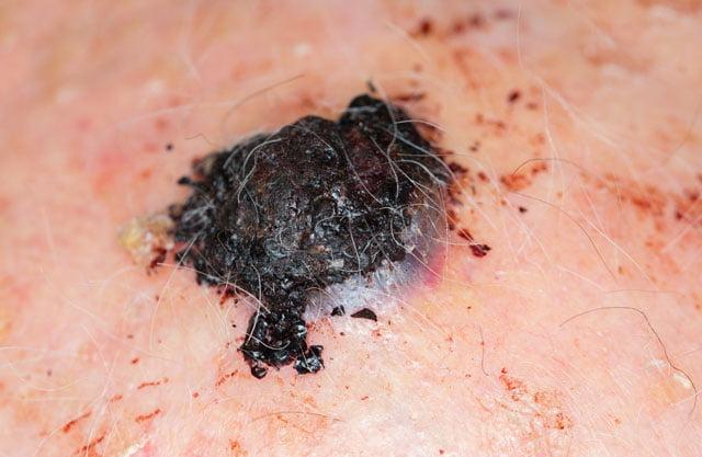 melanoma sul cuoio capelluto di un anziano