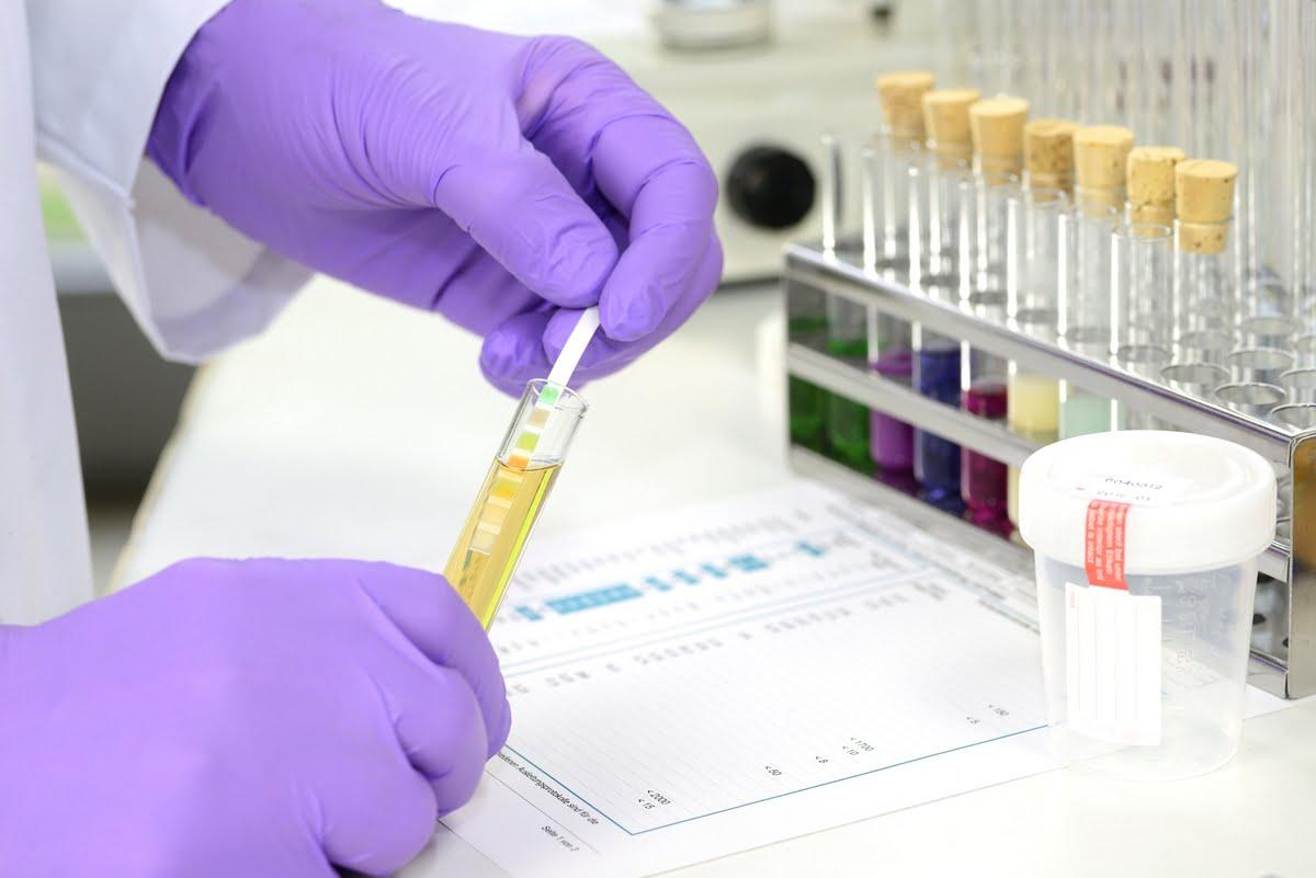 cellule epiteliali nelle urine