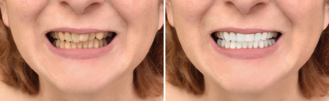 Denti gialli - rimedi