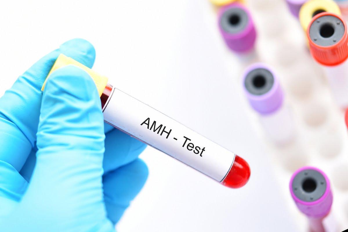 ormone antimulleriano - alto - basso