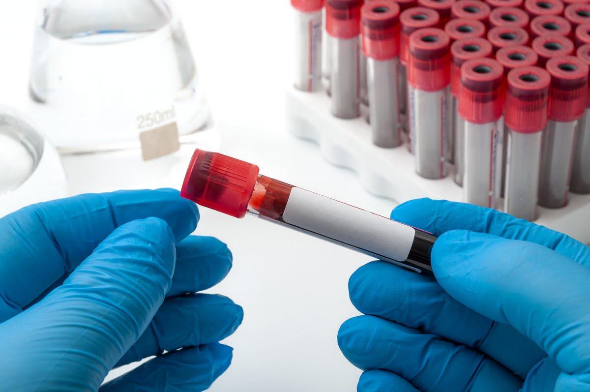 Trombocitosi cause
