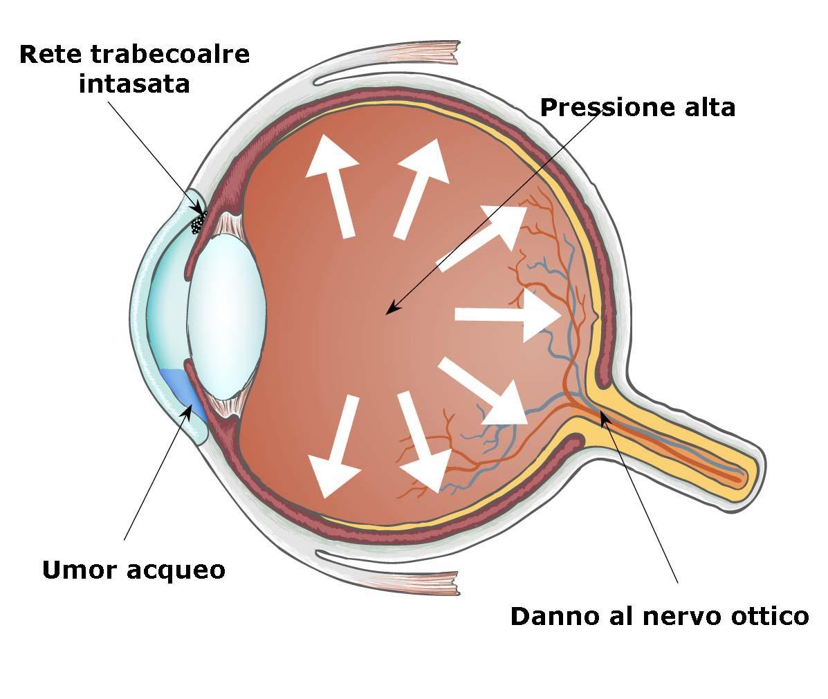 colliri per glaucoma