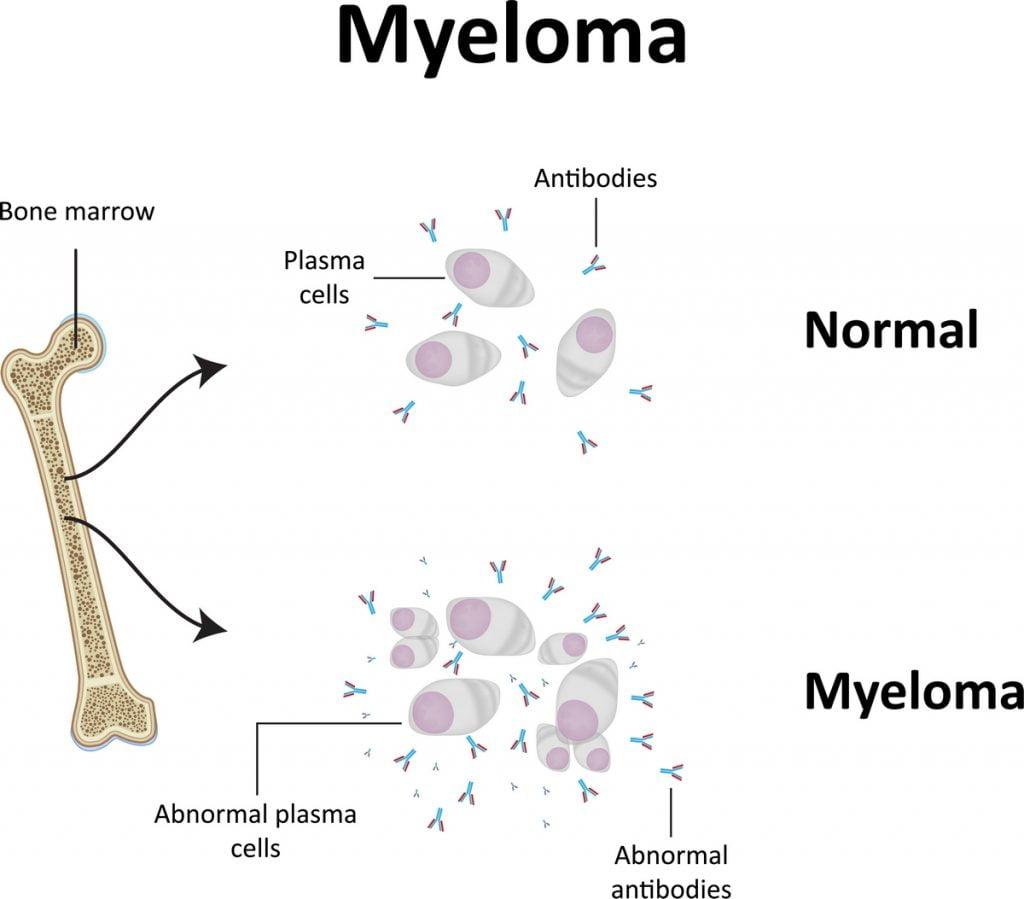 Mieloma multiplo sintomi