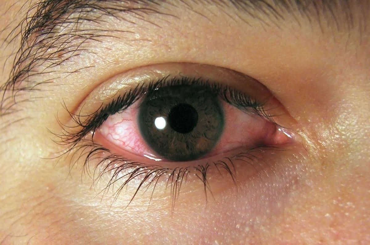 Occhi rossi - cause - rimedi