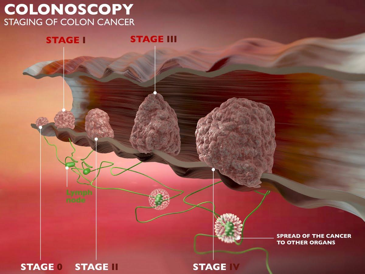 Colonscopia