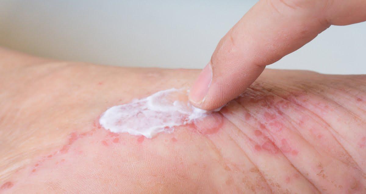 dermatite atopica rimedi naturali