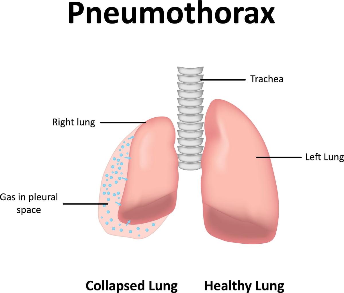 Pneumotorace - sintomi