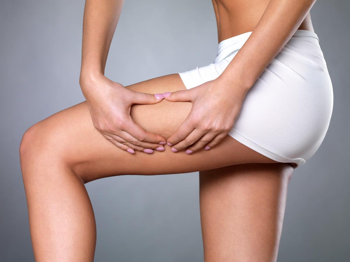 cellulite rimedi naturali