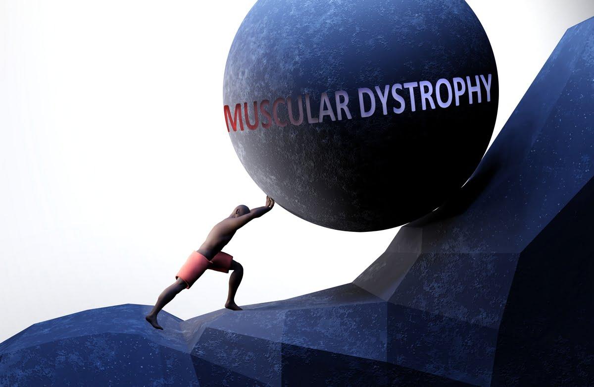 Distrofia muscolare