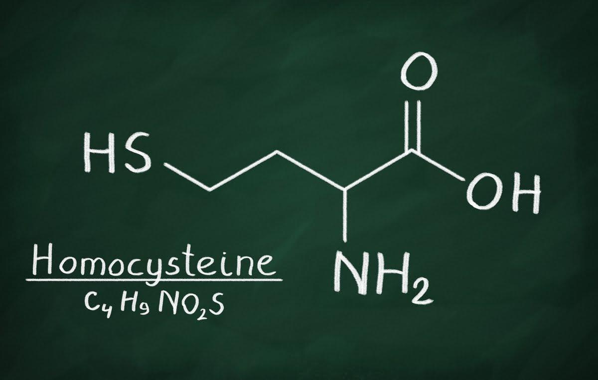 Omocisteina