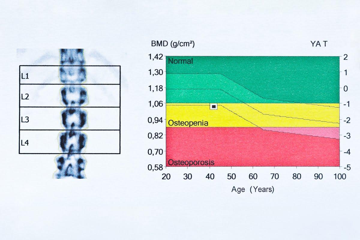 osteoporosi esami