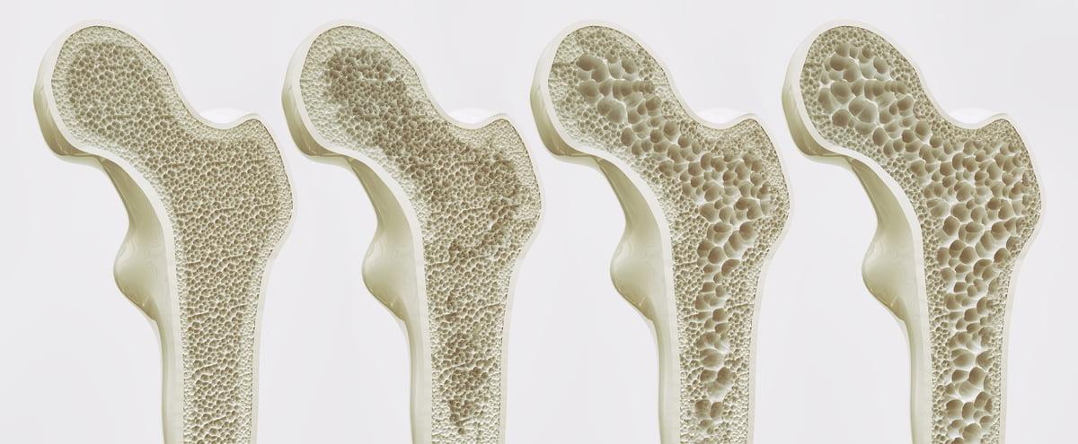 MOC mineralometria ossea computerizzata