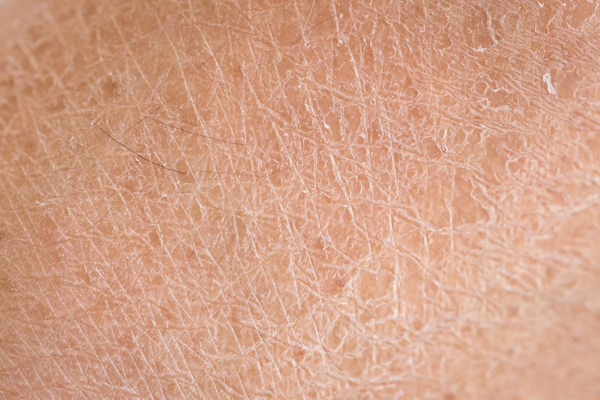 Pelle secca - Cause - rimedi