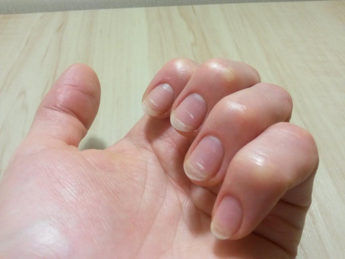 macchie bianche sulle unghe