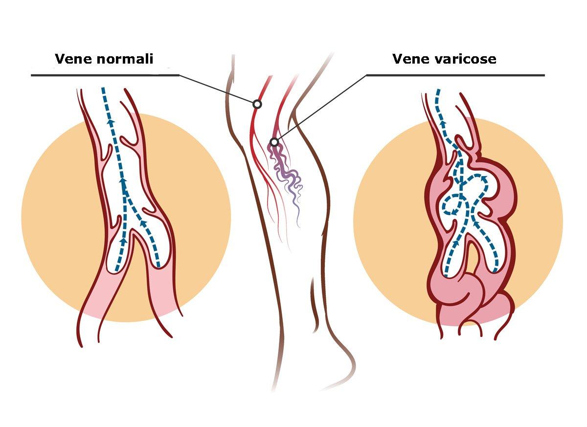 vene varicose rimedi naturali