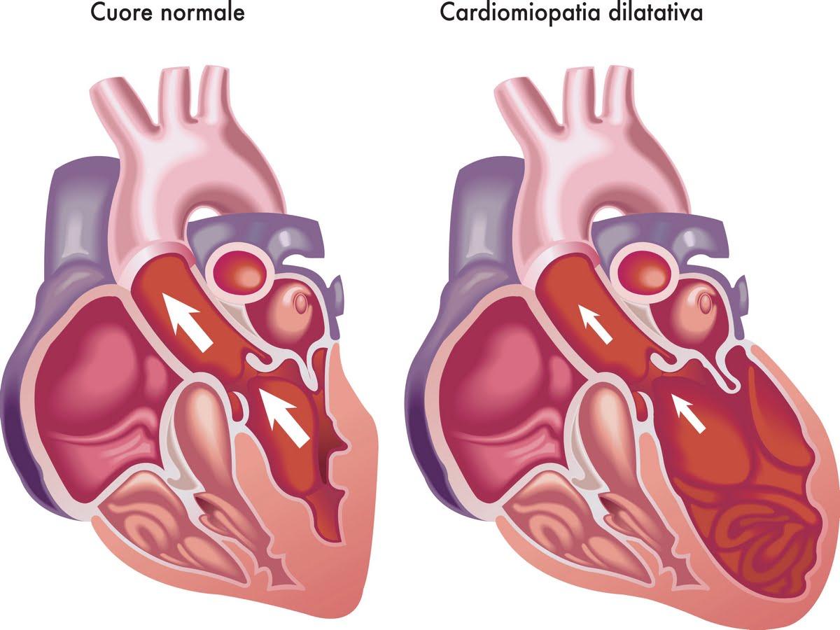 Cardiomiopatia dilatativa