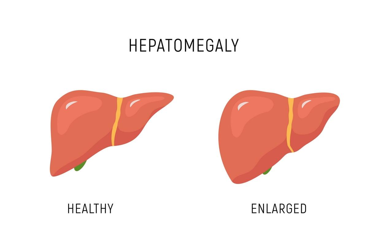 Fegato ingrossato - epatomegalia - Sintomi - cause