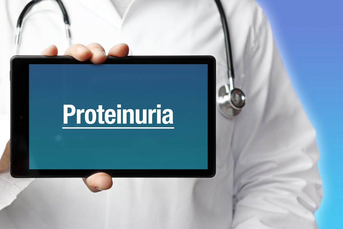 Proteinuria alta