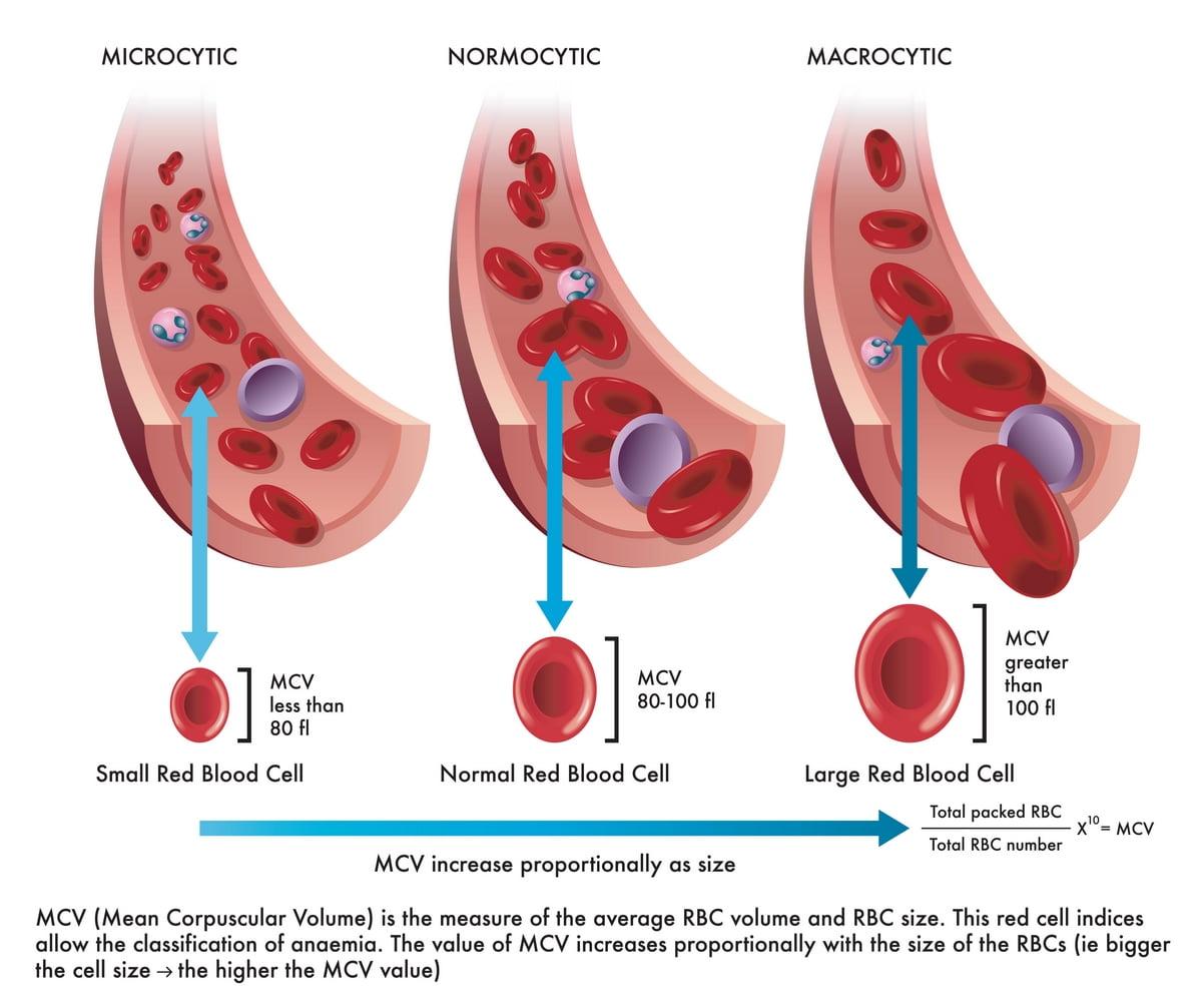 Globuli rossi piccoli - Cause - Sintomi