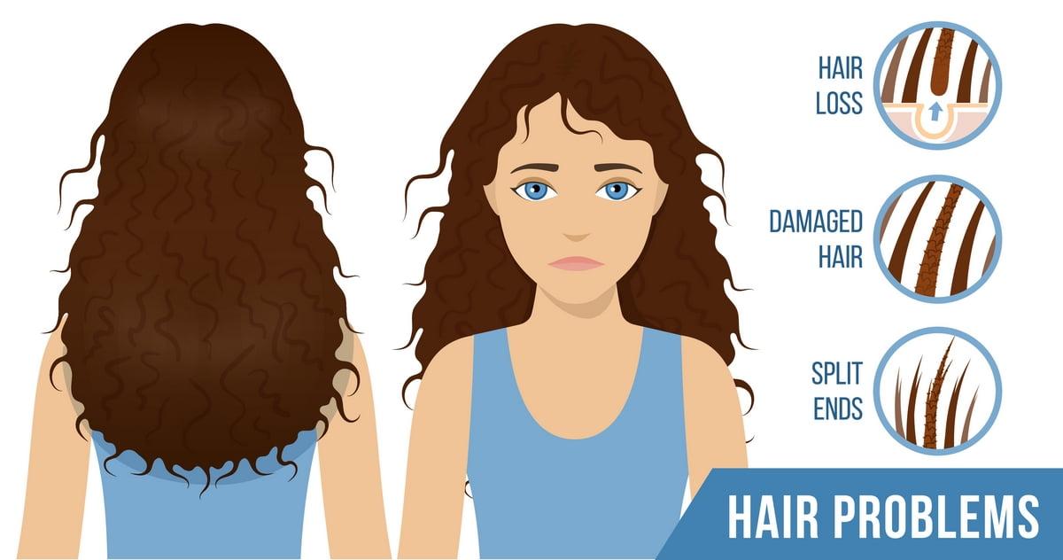 Problemi dei capelli - Doppie punte, capelli danneggiati e caduta