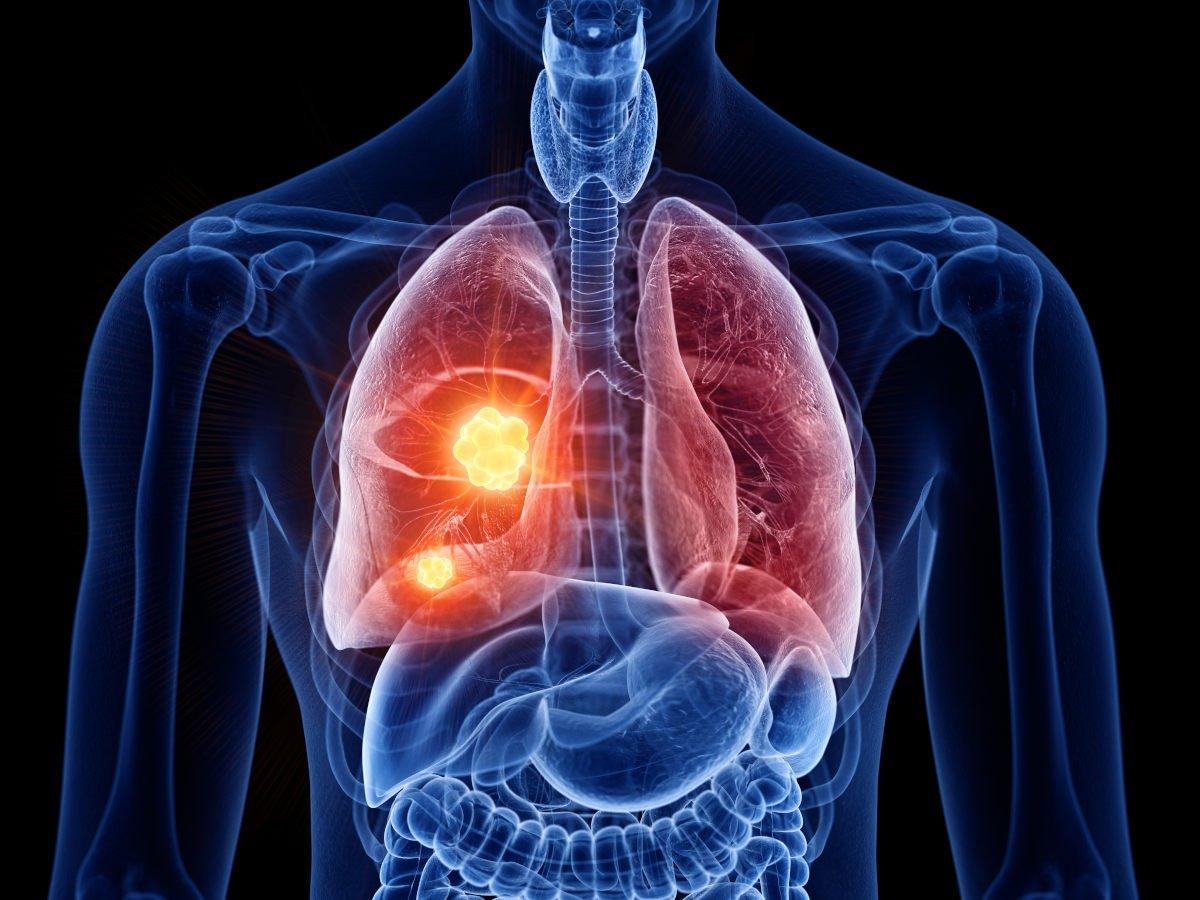 scintigrafia polmonare